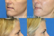 Injectables / Dermal Fillers and Injections in San Diego Ca offered !