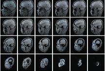 The fascinating brain / by beadingamy