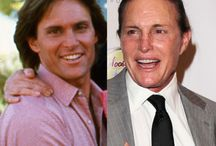 Dramatic Celebrity Transformations / celebrities who have had major makeovers or gone under the knife