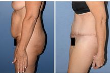 Tummy Tuck Abdominoplasty / A Tummy tuck surgery is also known as an Abdominoplasty. This procedure removes excess fat, skin and tissue to create a smoother contoured abdomen area.