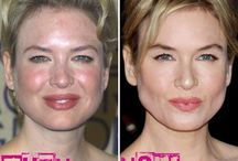 Stars and plastic surgery / From beauty to beast