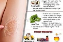 get rid of scars