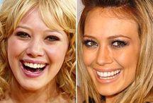 Celebrity Smiles / http://www.pinterest.com/sunnysmilesuk/