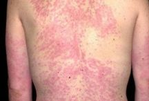 Allergies / Skin allergy