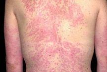 Allergies / Skin allergy
