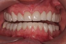 Full Mouth Dental Reconstruction / Full mouth dental reconstruction with root canals, crown lengthening surgeries, ceremic crowns, zirconia bridges! No dental implants used!