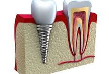 Implant Dentistry / Uppal dental care is the right dental care for implant dentistry in Hayward, Dr. Charanjit uppal is right dentist for implant dentistry in Hayward, contact us