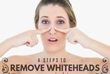 Whitehead removal