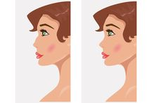 Cosmetic Surgery / All about cosmetic surgery procedures. From rhinoplasty to full body makeover, learn how the procedures are performed and what to expect from them.