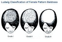 Hair Loss Treatment in Men | Women