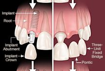 Dental Implants | Coral Springs, FL / Learn all about implant dentistry and its benefits! http://advdentistrycoralsprings.com/