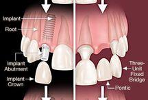Dental procedures