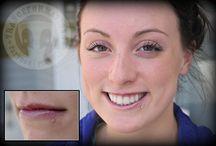 Oral Piercings We've Done / Oral piercings done by our piercers!