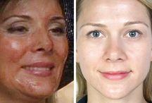 Facials/Chemical Peels