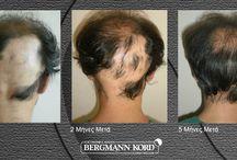 Θεραπεία PRP | Εικόνες πριν και μετά / www.kord.gr Θεραπεία PRP στην κλινική μαλλιών Bergmann Kord. Φωτογραφίες πριν και μετά.