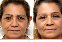 Eos: Eye Lift Surgery