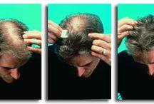 Couvré / Couvré is een complete behandeling voor je haar. Waar je eerst je hoofdhuid kon zien, zie je na behandeling met Couvré alleen nog maar een volle bos haar.