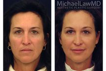 Dr. Michael Law- Raleigh Plastic Surgeon Before and After Facial Rejuvenation / Dr. Michael Law in #Raleigh N.C. uses facial rejuvenation to increase or restore the appearance of a younger age to human face. By using a combination of brow lift, elimination of eye bags, eyelids lift, elimination of senile spots, skin aging, facial sagging and wrinkles by face lift and rhytidectomy and physical or chemical peeling, chin lift (reduction of double chin), restoration of facial hairline, etc.  #bluewaterspa #raleigh #plasticsurgerybeforeandafter @FacialRejuvenation