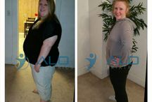 Before and After pictures / Amazing results after bariatric surgery. ALO Bariatrics.