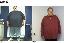 Before and After / Before and After Pictures of patients after having a bariatric procedure.