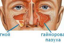 Henyantritis