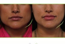 Eos: Masseter Botox / Procedure of the week: Masseter Botox                                                                                                                                                                             Gently reshapes and thins the jawline, giving you a slimmer, more feminine appearance.