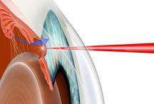 Επεμβάσεις Laser / Tο laser είναι μιά δέσμη φωτός που μπορεί να εστιαστεί και να ελεγχθεί με μεγάλη ακρίβεια. Υπάρχουν πολλά διαφορετικά είδη laser. Διαφέρουν στο χρώμα και στο αποτέλεσμα, και χρησιμοποιούνται για διάφορετικούς σκοπούς.