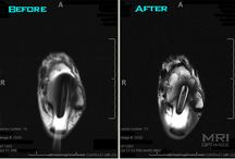 MRI MARS (Metal Artifact Reduction Sequence) / For patients who have had surgery on the body part that is supposed to MRI scanned again, protocols can be setup that will allow physicians to visualize the area much closer to the metal that usually causes artifact on MRI scans!  / by mri optimize