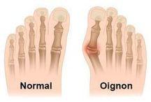 oignon pieds