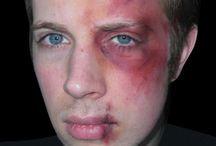 makeup Bruises