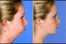 Lose face fat
