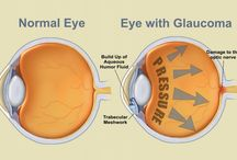Glaucoma / Glaucoma is a group of diseases that can damage the eye's optic nerve and result in vision loss and blindness. Glaucoma occurs when the normal fluid pressure inside the eyes slowly rises. However, with early treatment, you can often protect your eyes against serious vision loss.