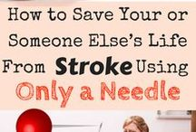 in the event of a stroke
