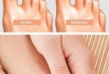 hongos en las uñas pie