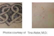 Tattoo Removal / The Candela Tri-Vantage Laser (AlexLAZR) is the strongest, most advanced laser for the removal of tattoos. It can selectively treat tattoo ink or pigment without damaging the surrounding skin.  Additionally our tattoo removal lasers can be used to remove permanent cosmetics. Because of the 3 wavelengths, the ATV is able to successfully treat most colors of ink.
