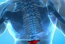 Dealing with Severe Spinal Stenosis both Neck & Lower Back