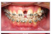 Orthodontics Before and After Gallery / The following before and after pictures are of actual orthodontics patients of the Las Vegas Smile Center.