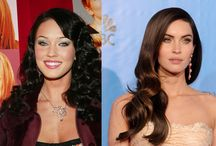 Celebrity Cosmetic Surgery / Have these celebrities had cosmetic surgery?