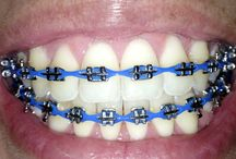 Metal Braces / Comfort - Comfort and braces do not go hand-in-hand although we do our best to ensure every patient is as comfortable as possible while the braces methodically straighten their teeth. Since traditional metal braces work the fastest because they are the strongest, they are also the least comfortable, but it is definitely worth the payoff.
