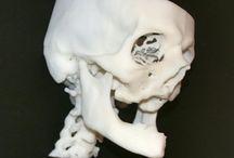 3D Printing Medical / Prothéses