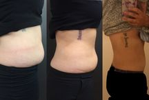 SculpSure Body Contouring / All things Fat Reduction