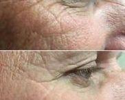 Face Reflexology Gymnastics To Age-Regress Your Face / Face Toning: Japanese Facelift Massaging System