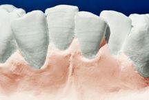 Cuidar de los dientes a temprana edad / Cuidados de los dientes de los niños - caries, encías, salud oral, cepillarse los dientes