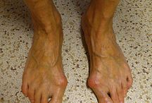 Náprava - vbočené palce u nohou