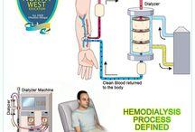 Hemodialysis Process Defined