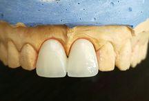 seramik dişler (empress-zirconium)