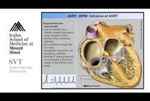 Tachycardia / I have Supra Ventricular A/V Node rentrant Tachycardia. This is a collection of information on tachycardia.