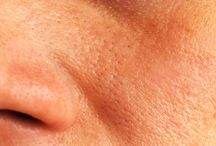 Yves in: Οι συνήθειες που φράζουν τους πόρους του δέρματος