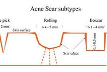 This and That / Acne Tips and Tricks from our acne blog https://www.porespective.com/blog/