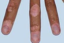 cara mengobati vitiligo anak
